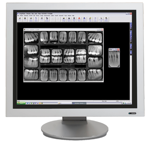 dental X-Ray - Centennial, CO
