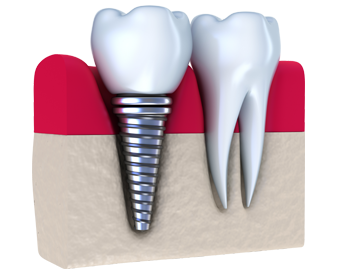 Dental Implants Centennial, CO