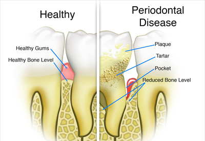Gum Disease and Tooth and Bone Loss Centennial, CO